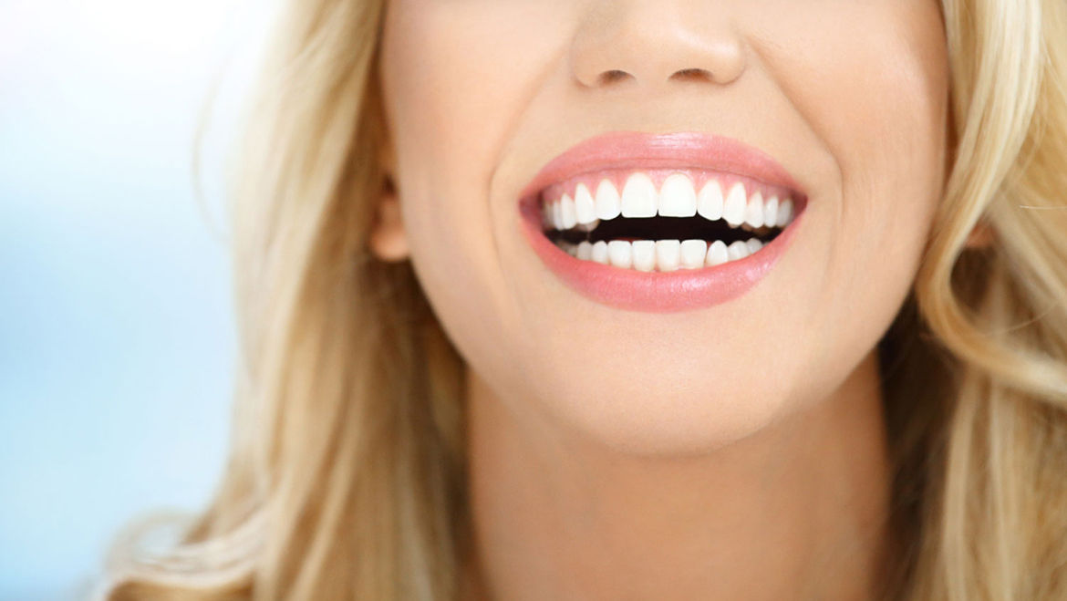 Frequently Asked Questions About Porcelain Veneers