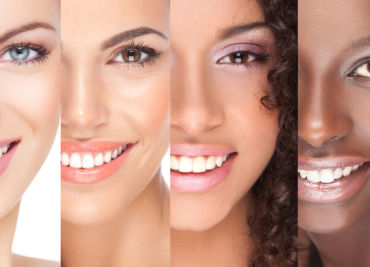 Best professional teeth whitening options